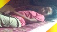 Herli digerogoti lupus. Terbaring lemah di atas kasur kumal dalam rumahnya, tidak bisa bangun, bergerak saja sakit, nyeri di tiap sendi